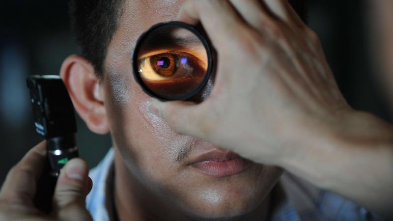 Seeing the brain through the eyes